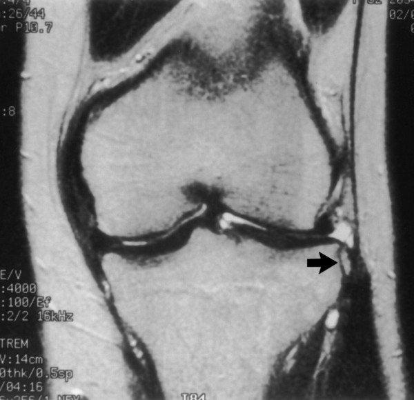 térd artrotomia helyreállítása)