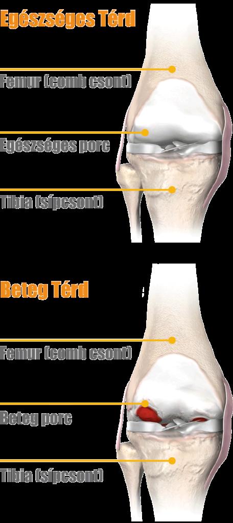 térd osteonecrosis kezelése)