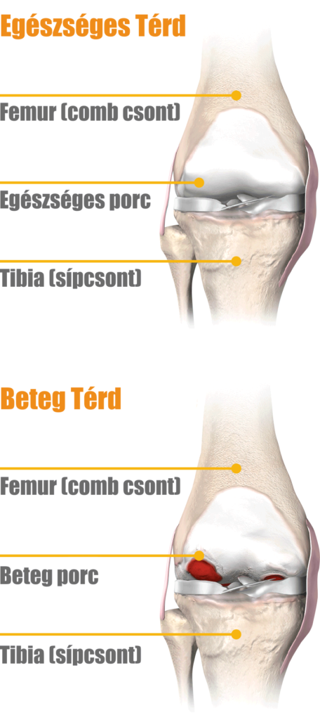 térdfájdalom az ízületi gyulladás kezelése