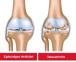 térdízület artrózisával lehet edzeni