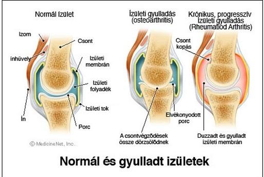 ízületi kattanások okai és kezelése)