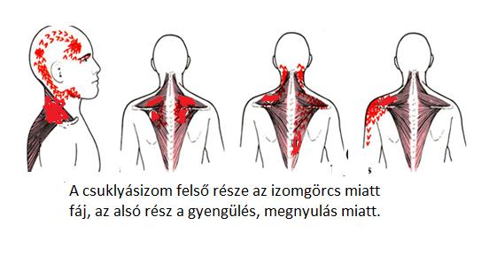 váll és nyak közötti fájdalom)