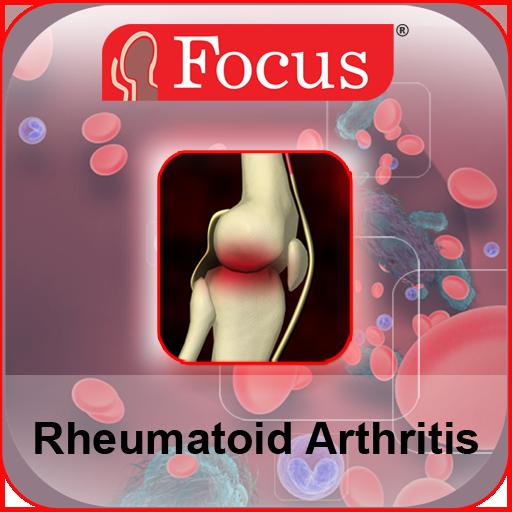 ízületek rheumatoid arthritis)