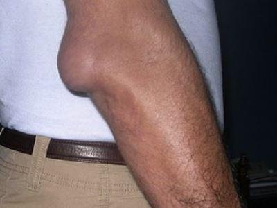 a lábujjak rheumatoid arthritisének kezelése