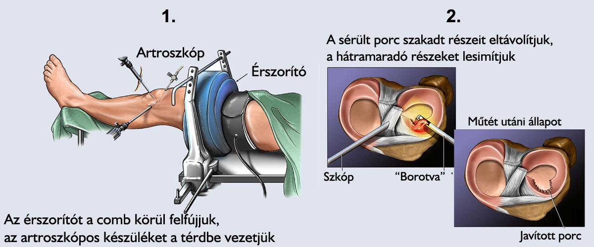 ízületi helyreállítás meniszkusz eltávolítása után kenőcs a könyök ízületi gyulladásának kezelésére