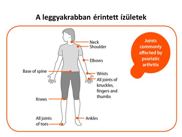 ízületi mozgások rheumatoid arthritisben