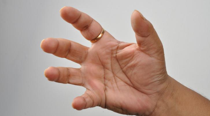 Fájdalom a kézkezelésben a gyűrűs ujj ízületében