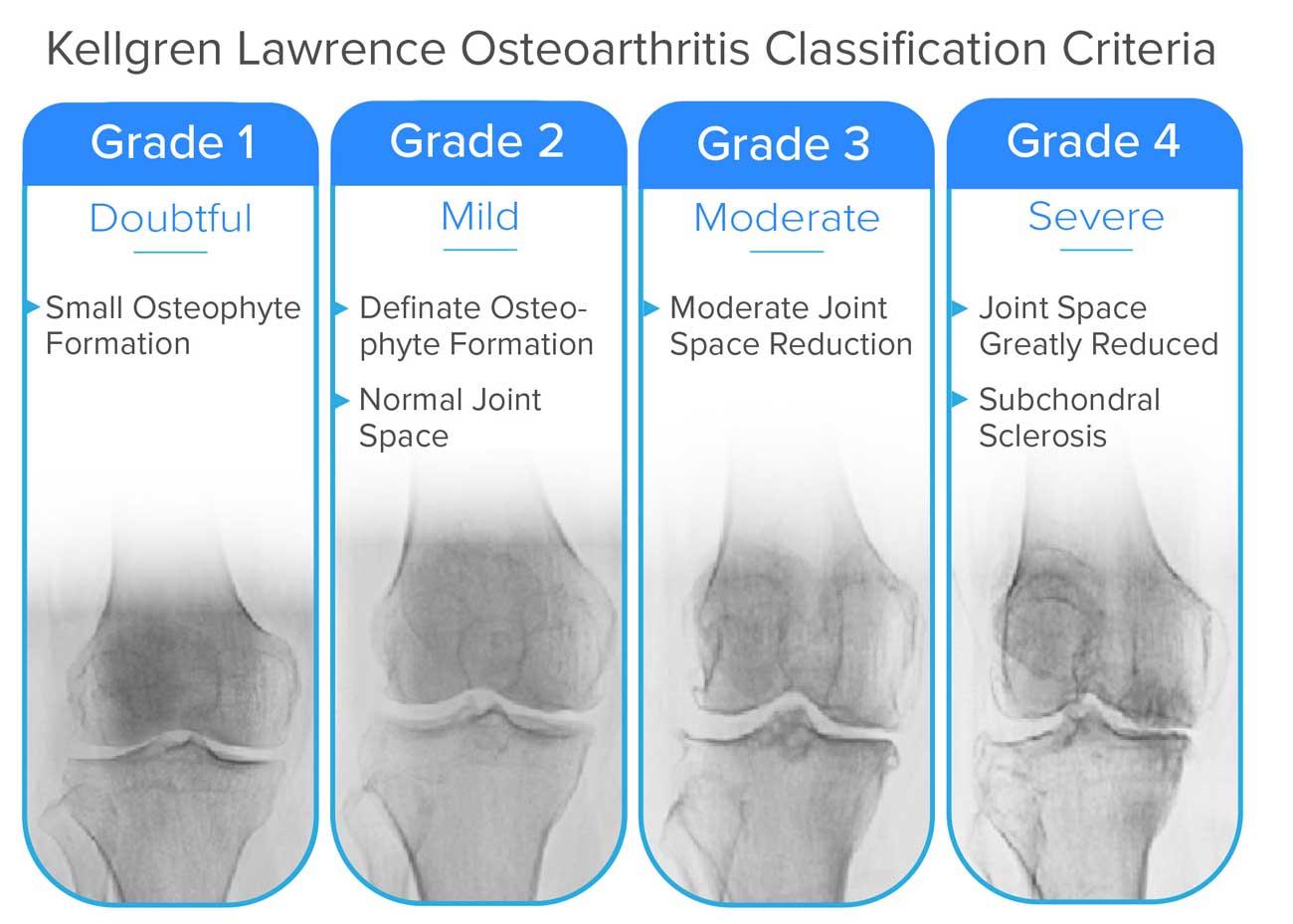 a bokaízület artrózisa 1 2 fok