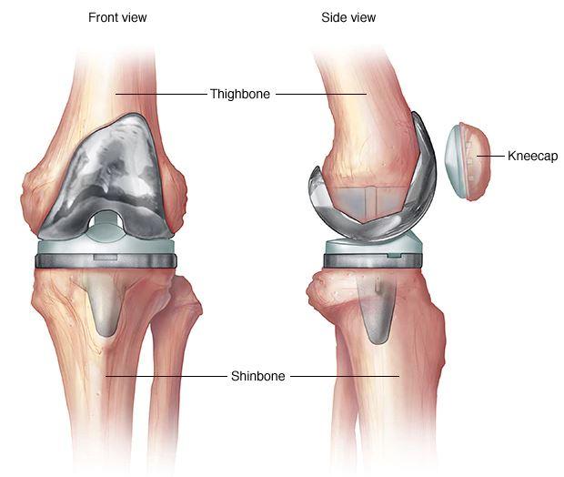 kenőcsök térd deformáló artrózisához)