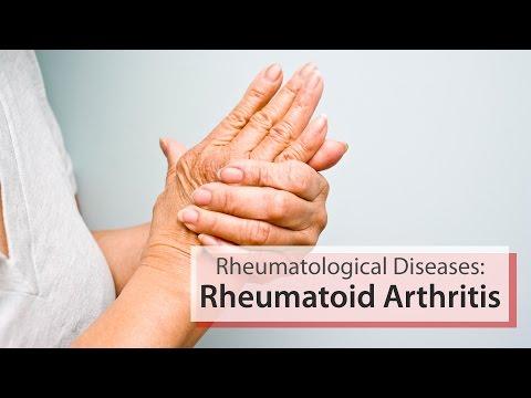 rheumatoid arthrosis kezelés áttekintése