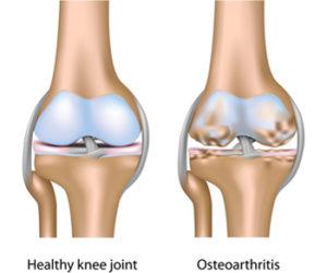 Az alsó végtagok ízületeinek sérülése a sportolókban. Izomfájdalom okai, kivizsgálása és kezelése