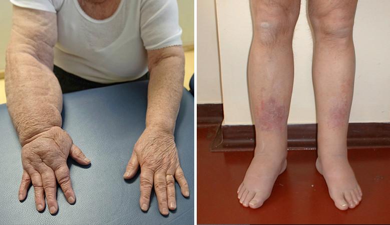 a lábak kezeinek duzzanata ízületi fájdalom