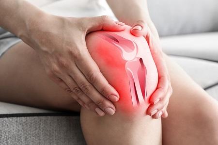 Hogyan lehet enyhíteni térdgyulladást és fájdalmat A térdfájdalom kezelése