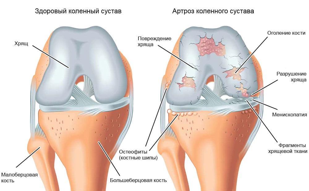 A térd gonarthrosisának kétoldalú kezelése