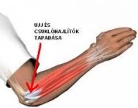 medialis könyök epicondylitis kezelése)