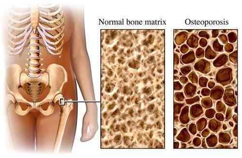 krémek csontritkulás kezelésére