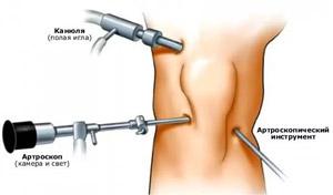 sokizületi gyulladás étrend ízületi fájdalom a tornászokban