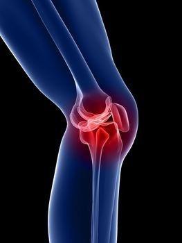 Térdfájdalom okai és kezelése, Féreg kezelés a térd