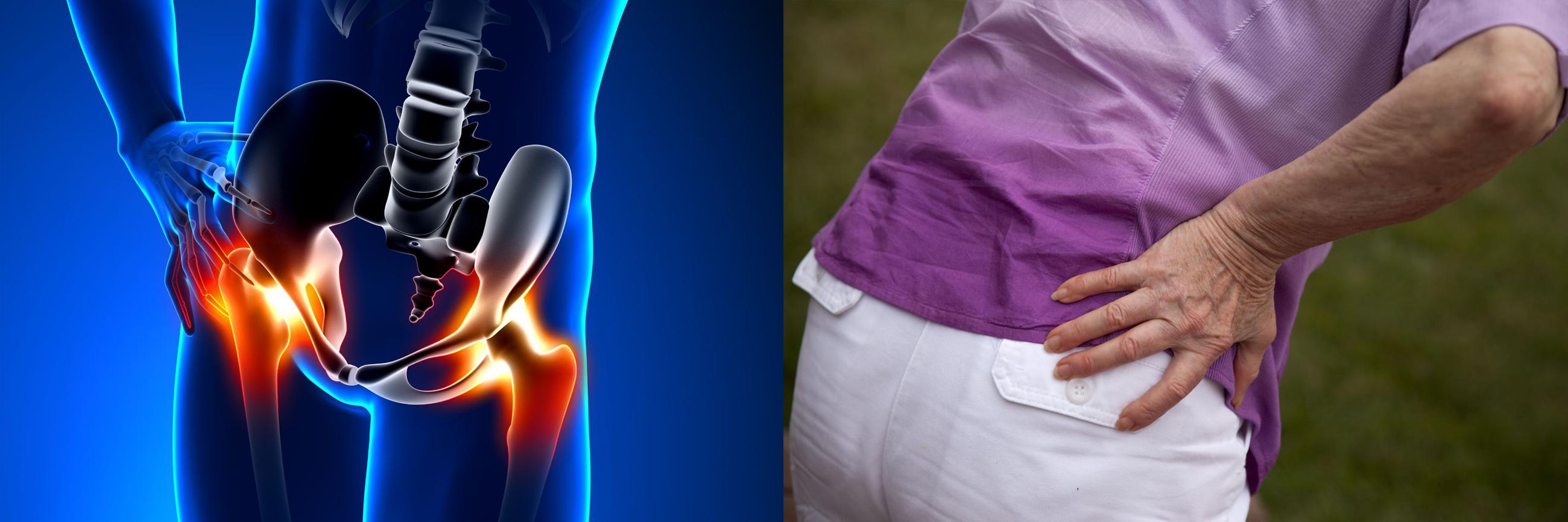 áttekintés a csípőízület artrózisáról)