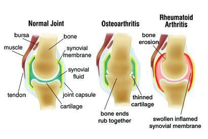 duzzadt lábízület duzzanat a bokaízület tibiofibularis szindemózisának károsodása