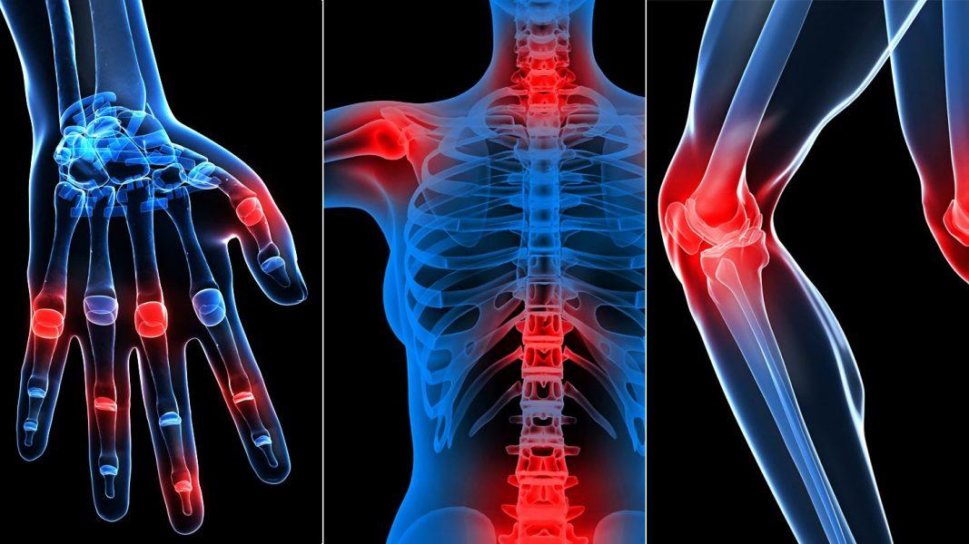 az ízületi csontok megsérítik az alsó hátat)