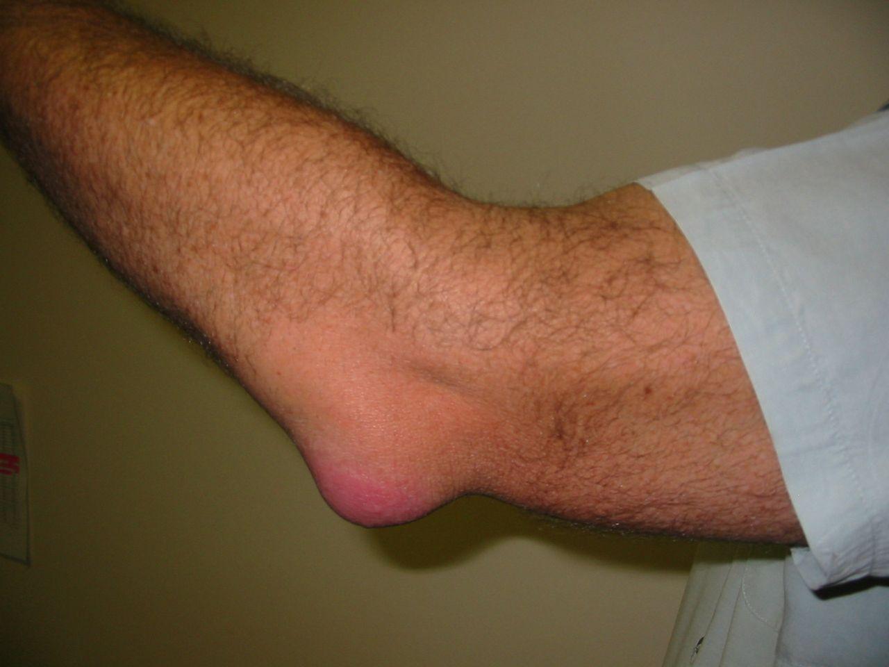 meddig fáj az ízületi gyulladás