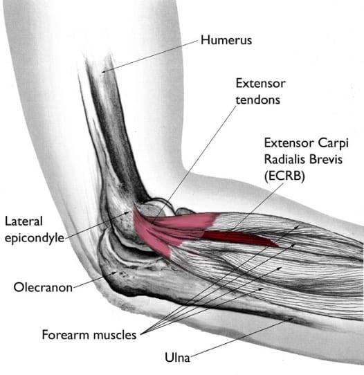 Az öt leggyakoribb lábfejfájdalom - Futás után a boka megduzzad és fáj