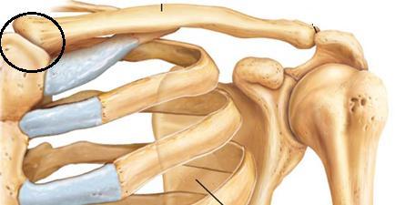 mit kell tenni ha az ízület csontritkulás miatt fáj térdfájdalom alvás után