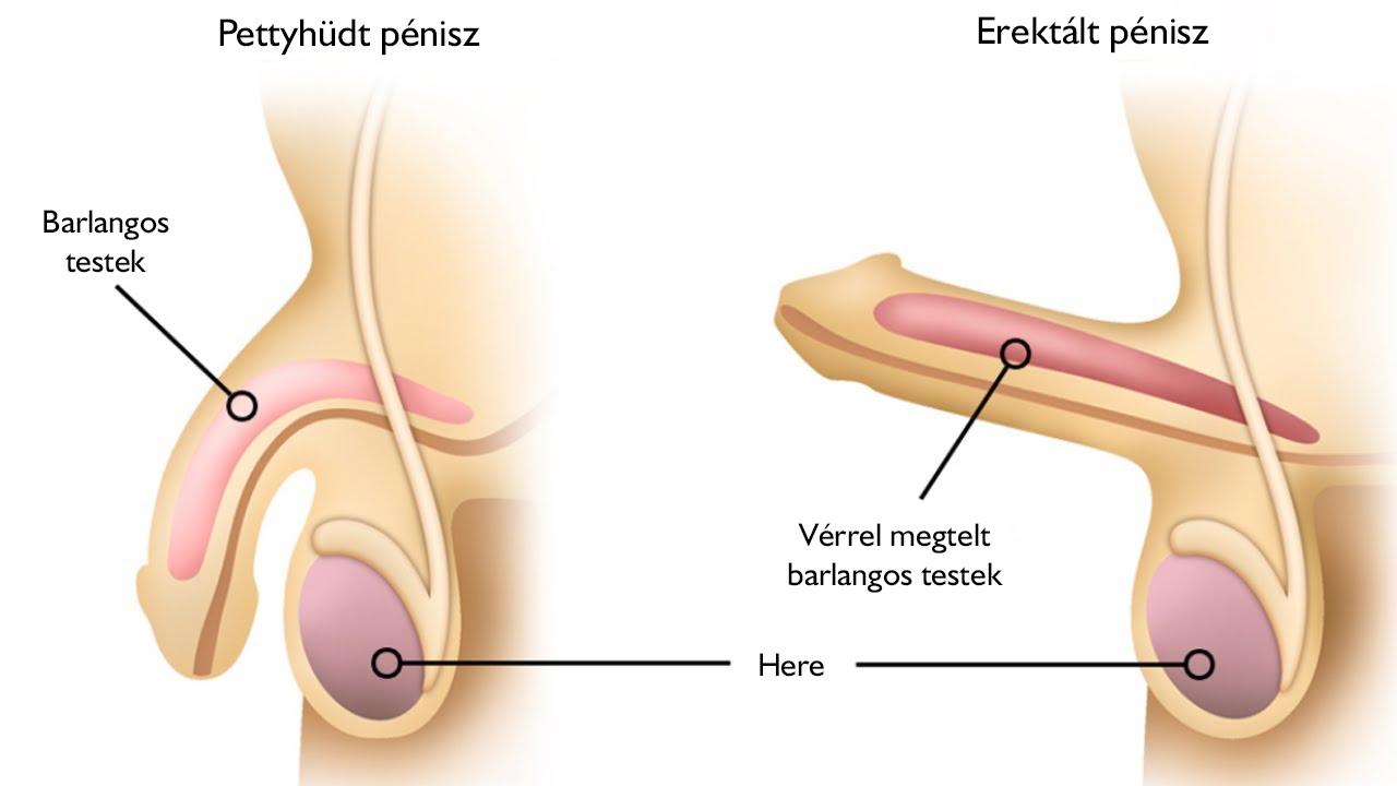 A prosztatitis- betegség oka a férfiakban