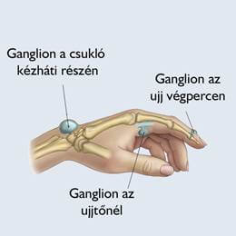 módszerek a kéz arthrosisának kezelésére ujjízületek a kezekben