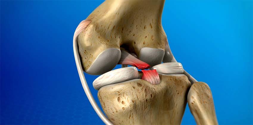 a térd sérüléseinek típusai