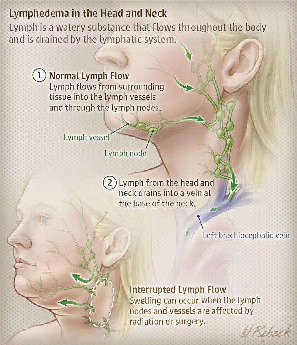 kokszízületi tünetek és kezelés)