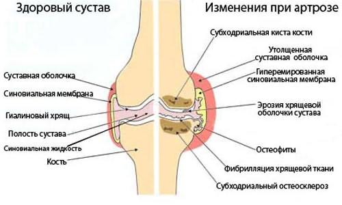 A fájdalom okai a metatarsalis csontokban - Az ízület lapos lábú artrózisa