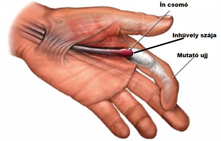 duzzadt és fájó ujjízület ortopédia kőszeg