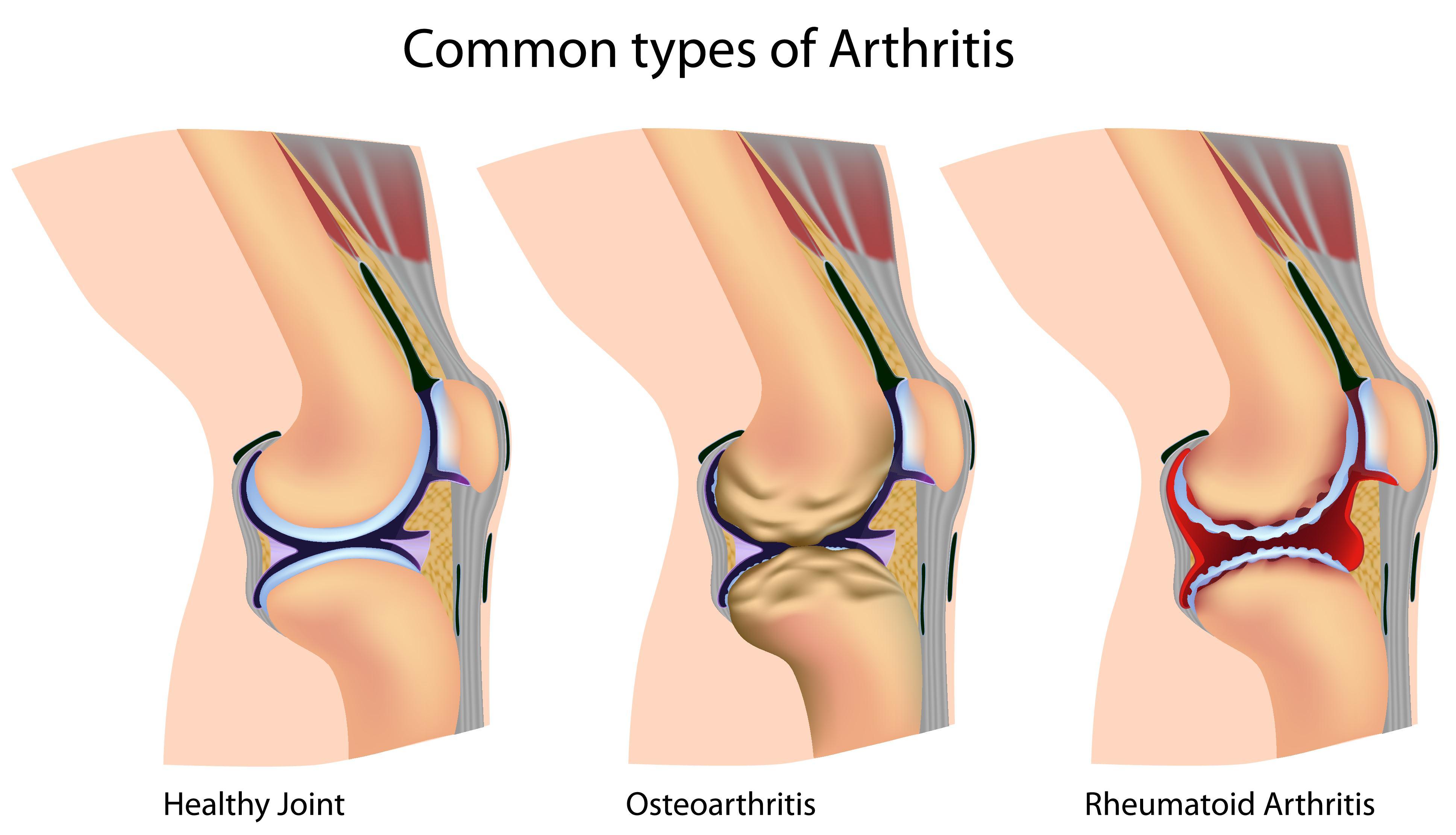térd radiográfia rheumatoid arthritisben)