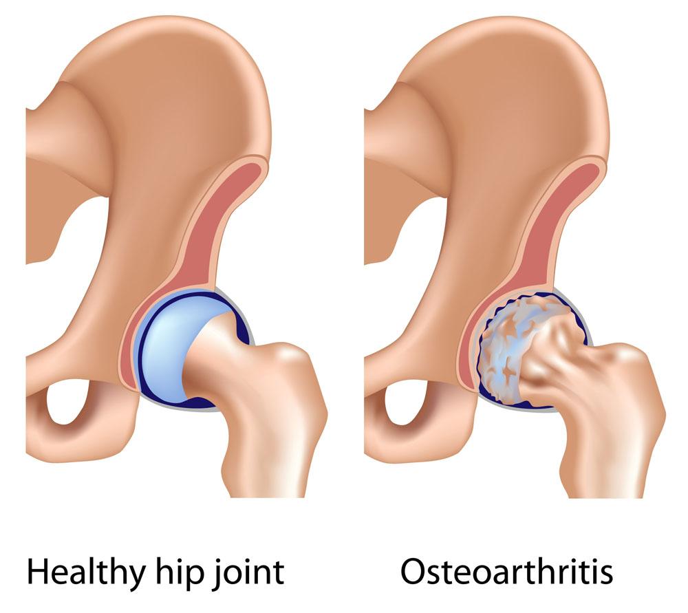 csípőízület nem műtéti kezelése közös kezelés bashkortostanban