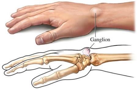 A gyűrűsujj ízületi fájdalma, A kéz leggyakoribb betegségei