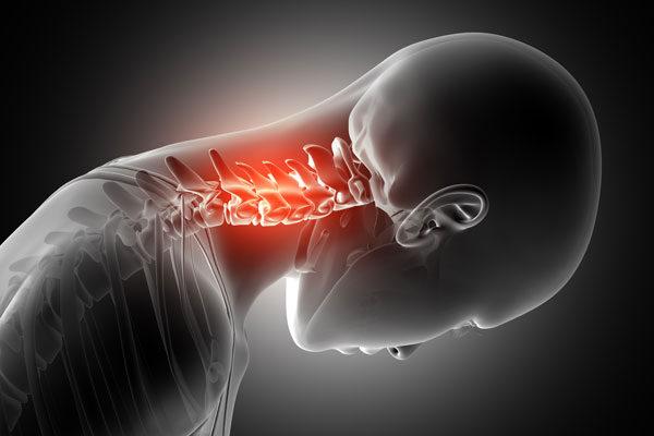 A nyaki gerinc feltáratlan artrózisának kezelése