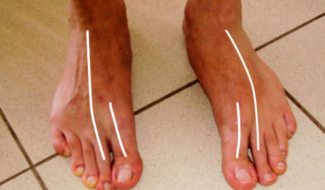 artritisz lábujjak kezelési áttekintése