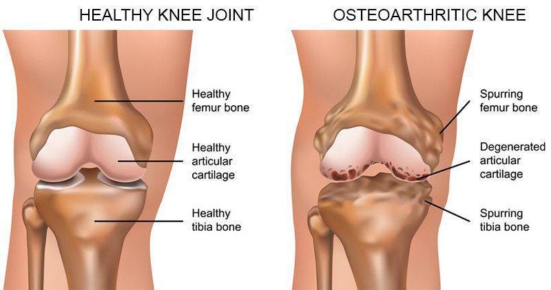 térdízület tünetei keresztező ligamentum törés kezelése