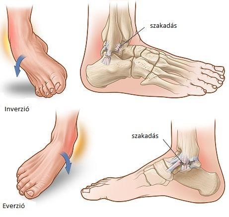 Égő fájdalom a lábujj ízületében, Hogyan fáj?