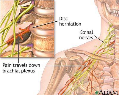 GUNA FÁJDALOMCSILLAPÍTÁS, Brachialis artrózis kezelési módszerei