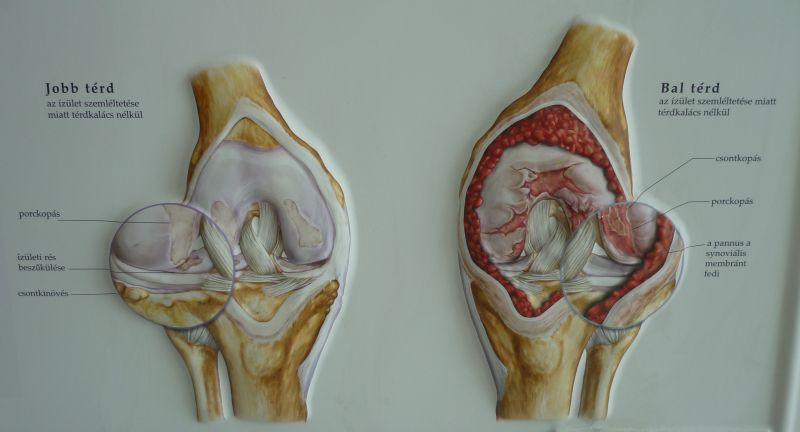 vibrációs masszázs a térd artrózisában prostate size chart