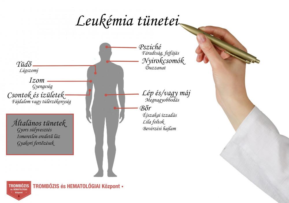 ízületi fájdalom és limfociták térdízület fájdalom kívül
