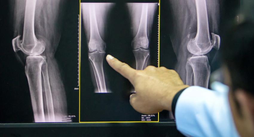 térd artrózis 2 fokos gyógyszeres kezelés)