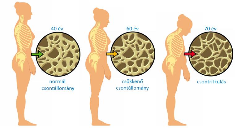 kenőcs csontritkulás kezelésére