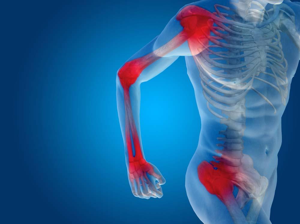 Enyhítse az ízületi fájdalmakat zúzódásokkal, Mi a fájdalom célja?