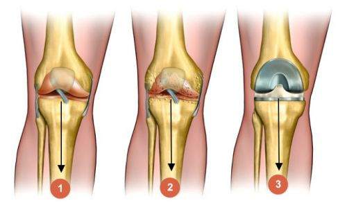 módszer a bokaízület deformáló artrózisának kezelésére