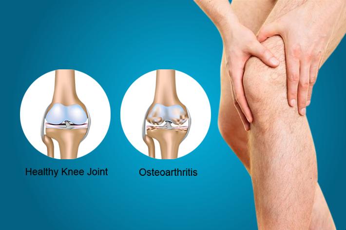 hatékony gyógymód a térd artrózisában