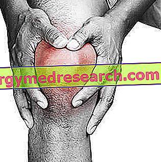 chondroprotektorok térdízület artrózisához 3 fokkal